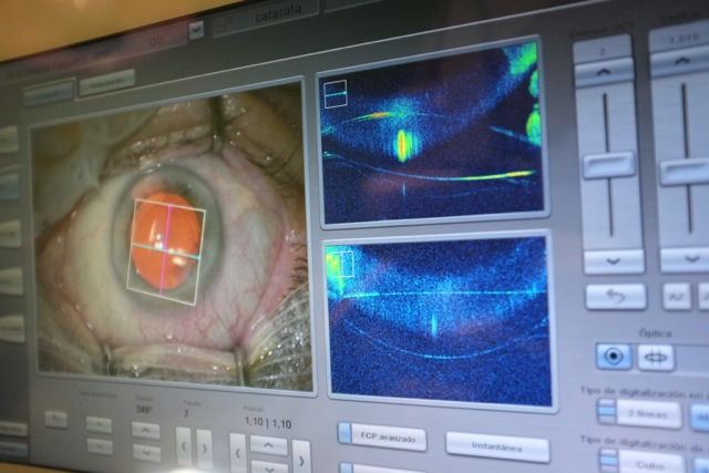 El Hospital San Francisco de Asis incorpora el primer microscopio quirúrgico con escaner ocular OCT